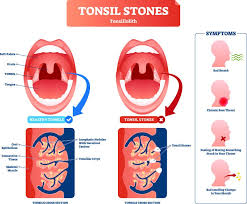 what are tonsil stones or tonsilliths