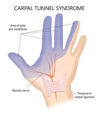 Iowa Work Comp Payout Chart Pursuing Workers Compensation For Carpal Tunnel Injuries