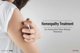 Homeopathy Treatment For Itching And Other Allergic Reactions - By ...