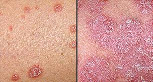 psoriasis pictures a visual guide to