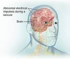 electroencephalogram eeg saint luke