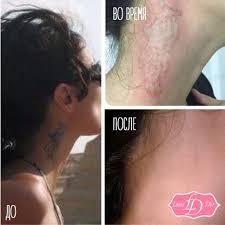 удаление тату лазером цена фото до и после сеть клиник подружки