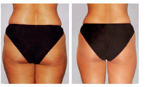 M gliche Zonen f r Liposuction und