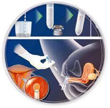insemination nebenwirkungen