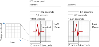 The Ecg Leads Electrodes Limb Leads Chest Precordial Leads 12