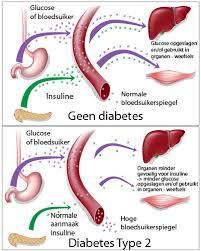 diabetes essay introduction diabetes essay conclusion