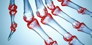 Resultado de imagen de artritis reumatoide pie
