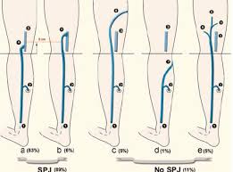 The Different Types And Frequency Of Small Saphenous Vein