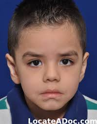 ear surgery otoplasty pictures of a 4 year old male 55 lb beforeafter