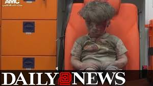 Image result for little Syrian boy Oman injured