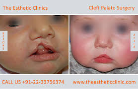 best cleft palate treatment in mumbai
