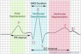 How To Read Cardiogram Chart Ecg Electrocardiogram Heartbeat Monitoring Information Myvmc