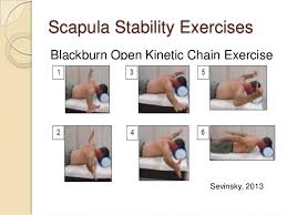winged scapula pain treatment