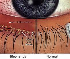 Image result for blephex