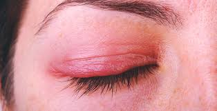 get rid of blepharitis 7 natural remes for an inflamed eyelid