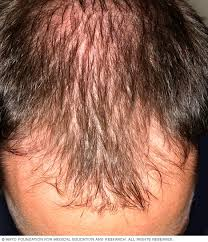 Male Or Female Pattern Baldness Treatments Best Hair Loss Symptoms And Causes Mayo Clinic