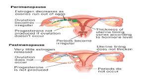 Perimenopausal Bleeding Patterns