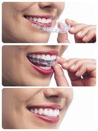 Overbite Correction Kraus Orthodontics Allen Tx Orthodontist