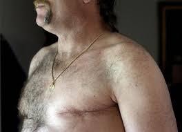 Image result for men breast cancer