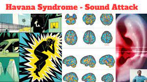 Havana syndrome   Sound attack