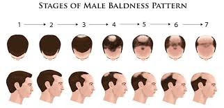 is hair loss a sign of low testosterone