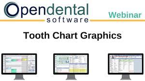 Open Dental Webinar Tooth Chart Graphics