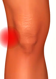buitenkant knie pijn