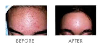 Does light therapy work for acne