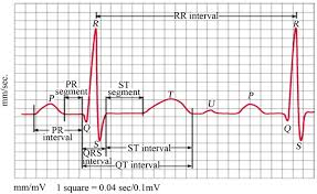 Ecg Chart Labeled Wavelet Diagnosis Of Ecg Signals With Kaiser Based Noise