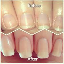 use the garlic paste onto your nails once a week but do apply the oil every night before bed within just 2 weeks you ll notice a huge difference in the