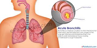 acute bronchitis cough