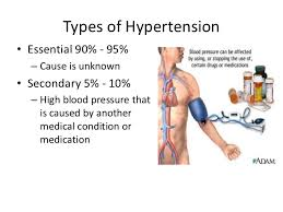 Hypertension Power Point For Module