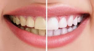 Image result for răng nhiễm màu