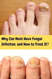 Pin on Nail Fungus (Onychomycosis)