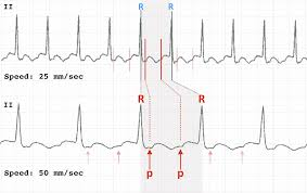 Ecg Chart Examples Ecg Rate Interpretation Litfl Medical Blog Ecg Library
