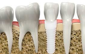 Resultado de imagen de implantes titanio