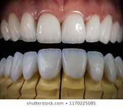 Dental Veneers Images Stock Photos Vectors Shutterstock