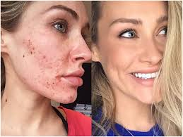 laser acne treatment for scars