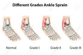 Image result for free images ankle sprains. The images classify the ankle sprains according to severity, Grades I-III. The images depict the ligaments involved in the injury.