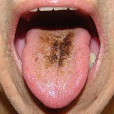 Peroxide black hairy tongue