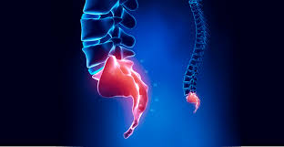 Understanding Coccydynia Tailbone Pain Nydnrehab