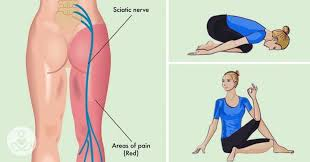 how to cure sciatic nerve pain