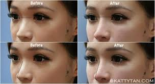nose smaller bridge higher without surgery or makeup my chin was quite alright except that my