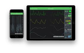Scichart Wpf Charts Ios Charts Android Charts And