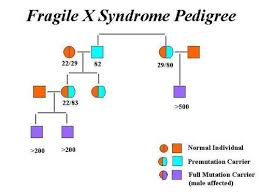 Fragile X Syndrome Pictures