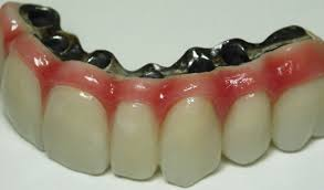 Mini Dental Implant Bridge ~ Full Arch Roundhouse Crowns for Fixed ...