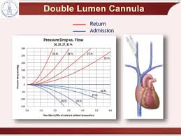 Cannulation And Recirculation In Vv Ecmo