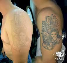 лазерное удаление татуировки студия татуировок White Hawk