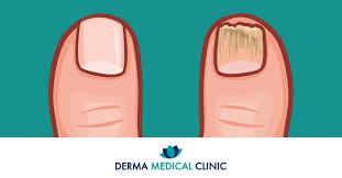 Onychomykóza Aneb Když Plíseň Napadne Nehet Derma Medical Clinic