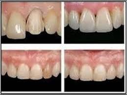 carillas dentales el gran problema de las carillas dentales bellisssimaafit youtube